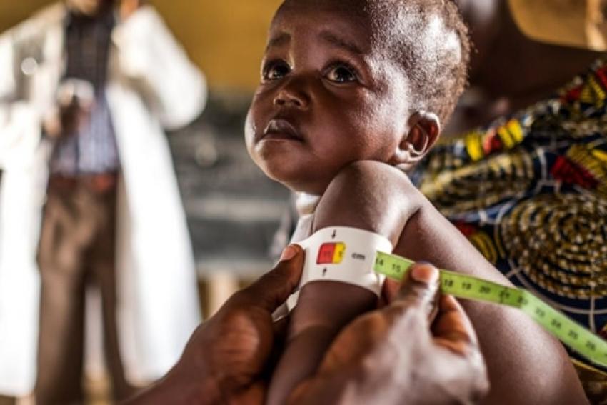 Metade das províncias angolanas enfrentam situação de extrema gravidade de desnutrição