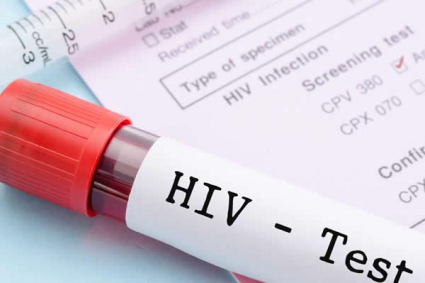 Ministério da Saúde de Angola veta reagente de testes de HIV
